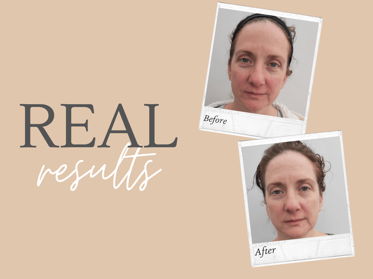 Real Results, Real People, Sensitive Skin